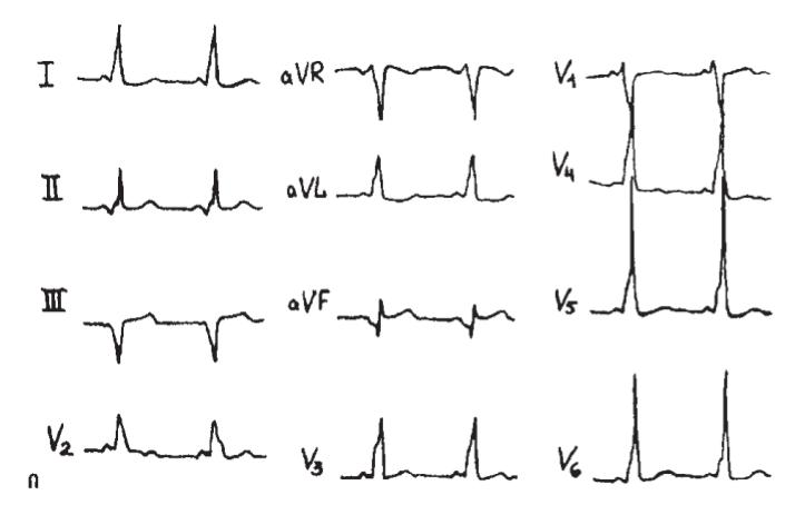 Синдром Вольффа-Паркинсона-Уайта